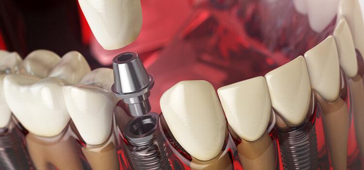 Regalatevi un Nuovo Sorriso con Implantologia