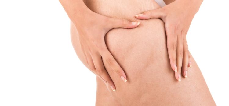 Desideri sottoporti ad un trattamento per la cellulite a Genova? Ecco chi puoi contattare